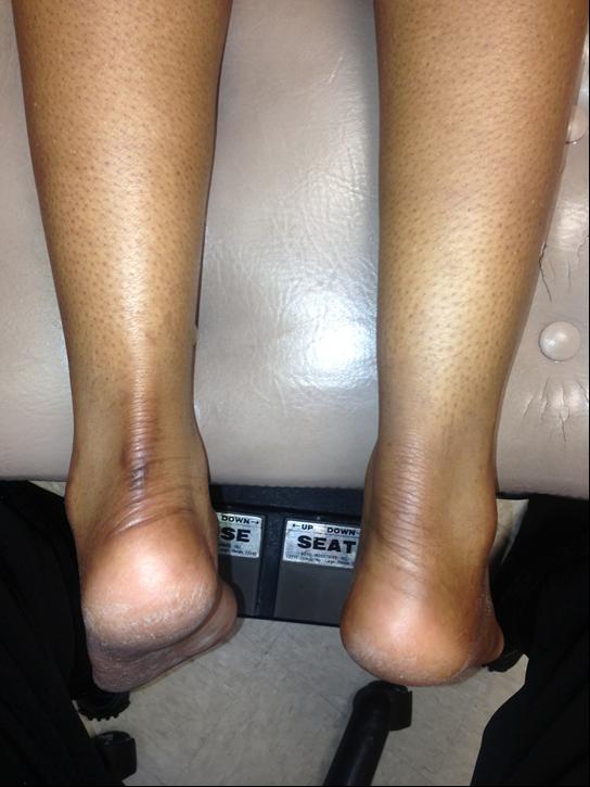 swollen Achilles tendon