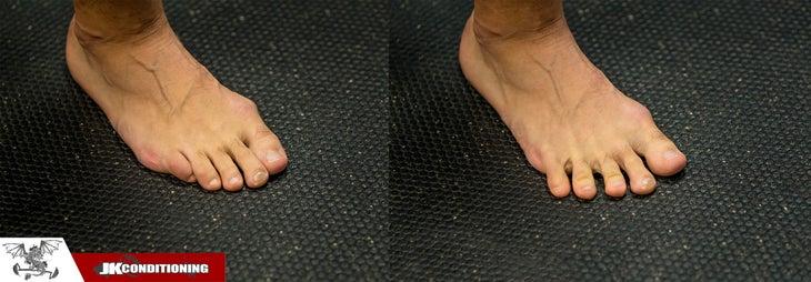 extensión del dedo del pie